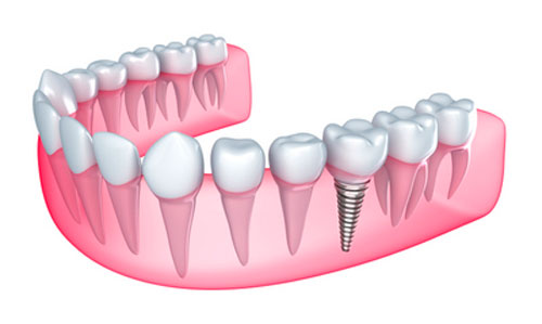 Replace missing teeth with Dental Implants at Samuel S. Wong, DDS