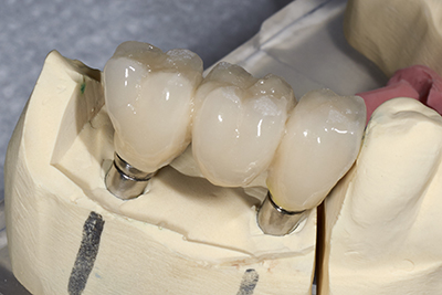 Porcelain fixed bridges done by our dentist at Samuel S. Wong, DDS