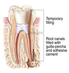 Root Canal Therapy at Samuel S. Wong, DDS