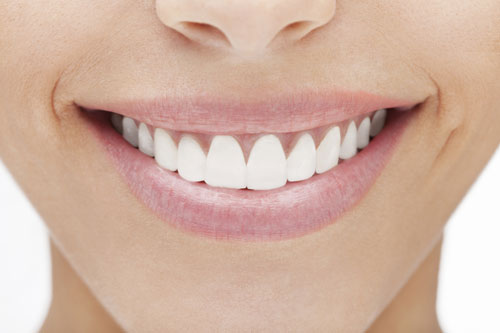 Veneers at Samuel S. Wong, DDS