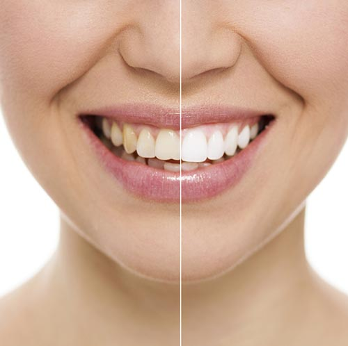 Teeth Whitening at Samuel S. Wong, DDS